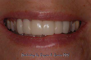 dental implant temporary