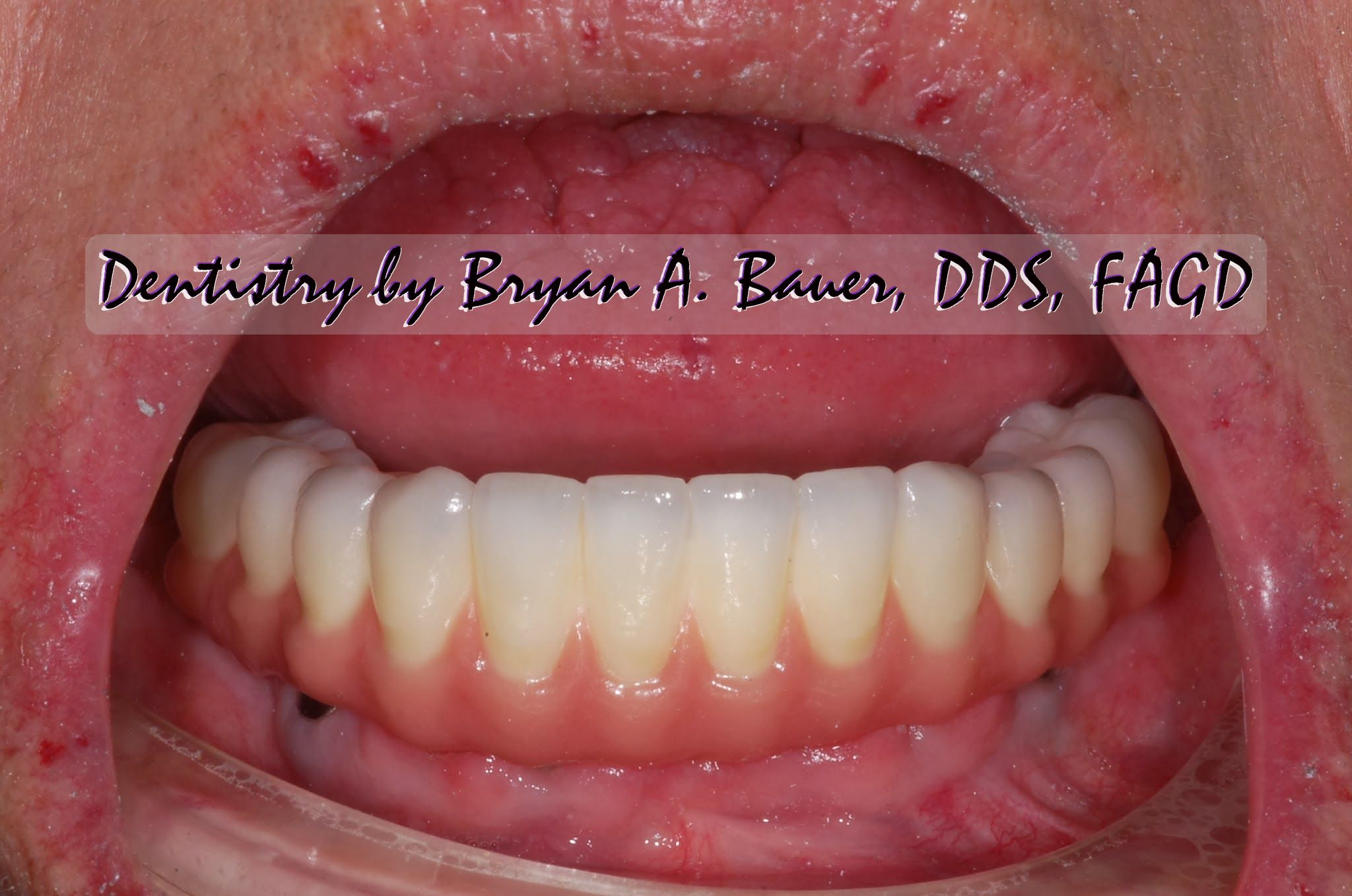 how much does invisalign cost with Fixed Detachable Provisional on Wheaton Dental Implants likewise Dental Assistant besides Braces Vs Invisalign moreover Your First Day Of Braces also Orthodontic Treatment Kids.
