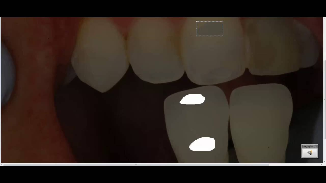 Dental Shade Determination How To Pick The Right Color Bauer Smiles