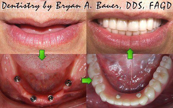 dental_002