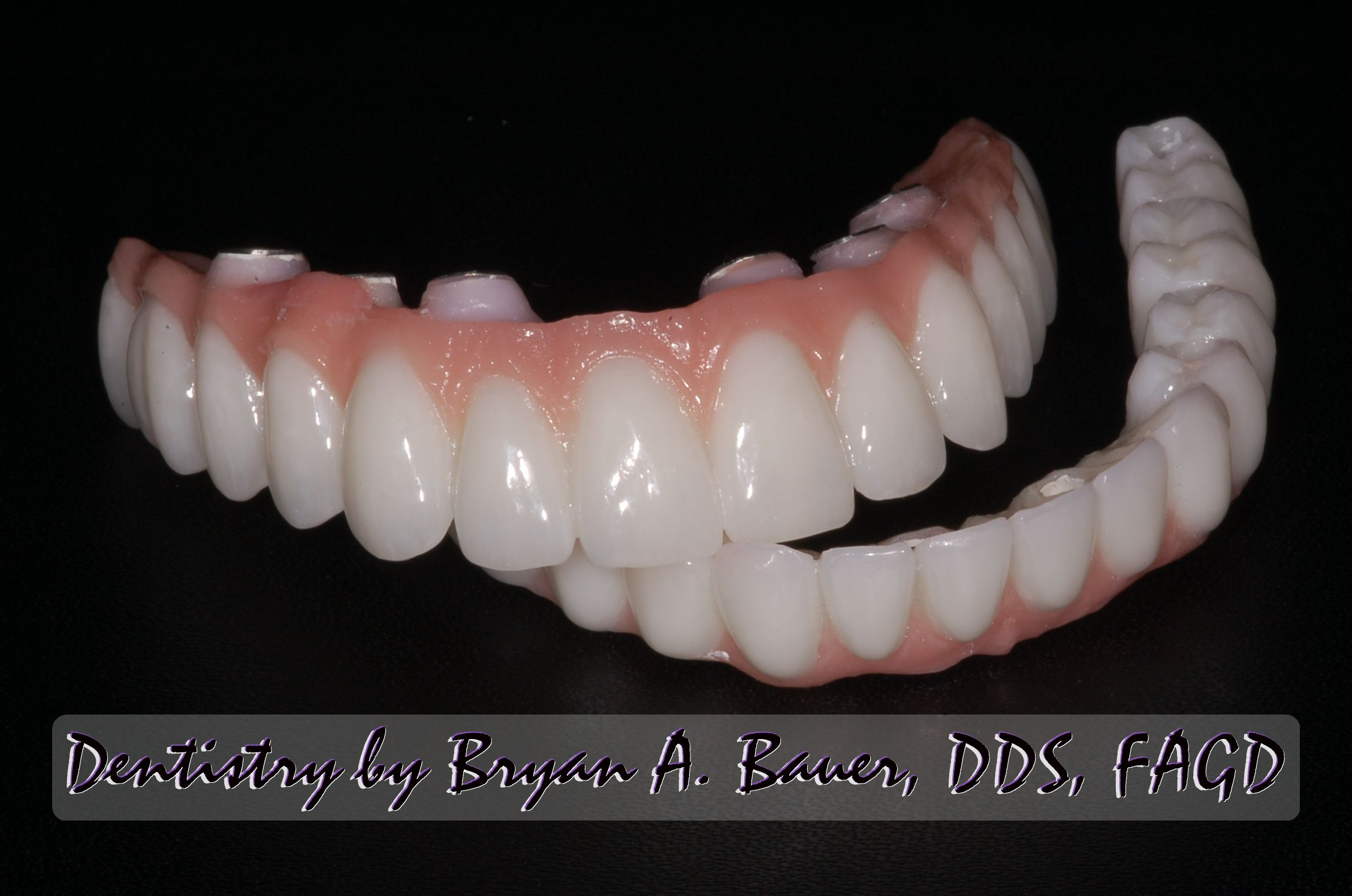 full-arch-zirconia-implant-supported-bridge.jpg