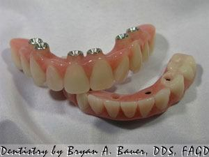 full_arch_implant