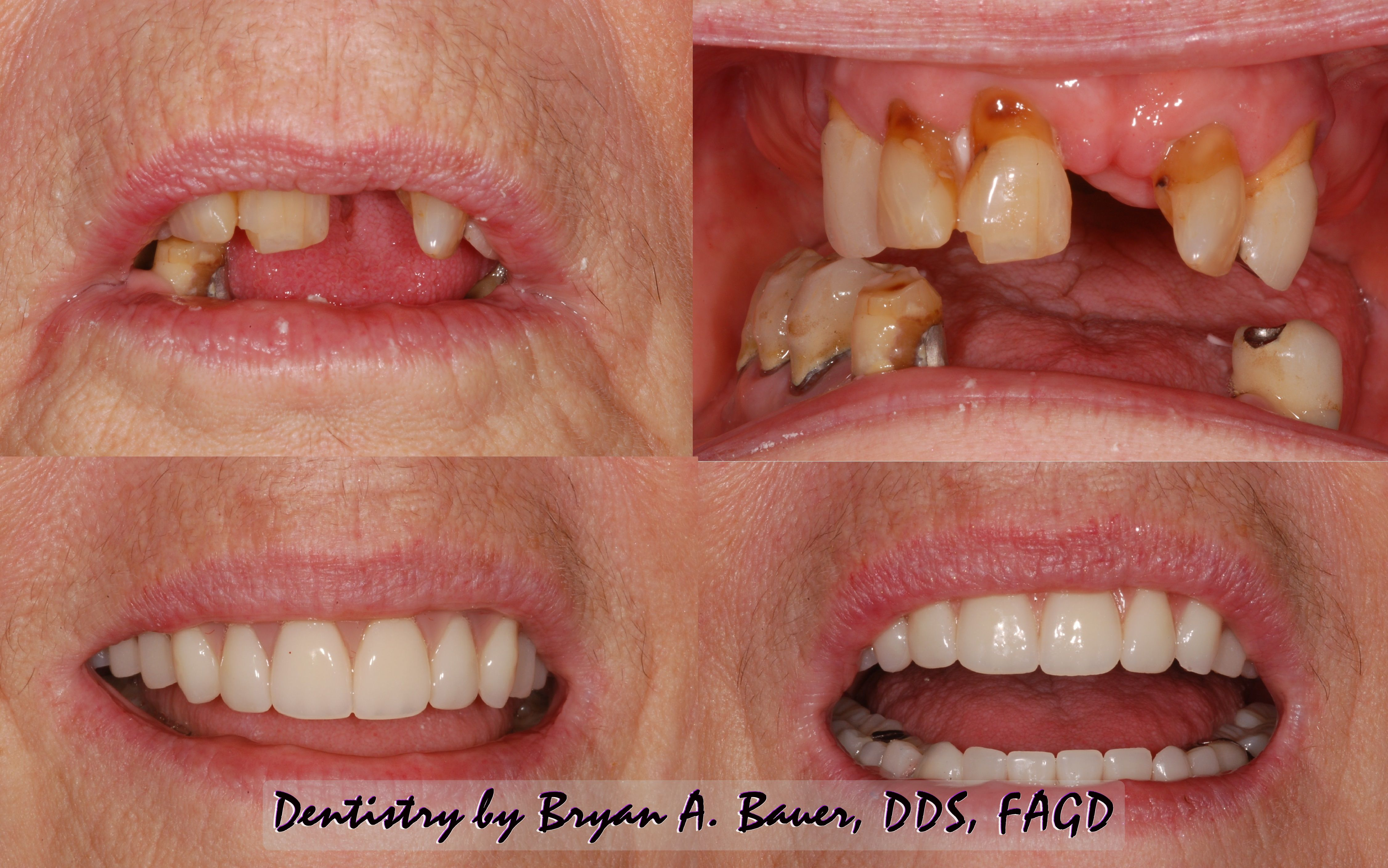 Implant supported denture or bridge - all on four All on 4