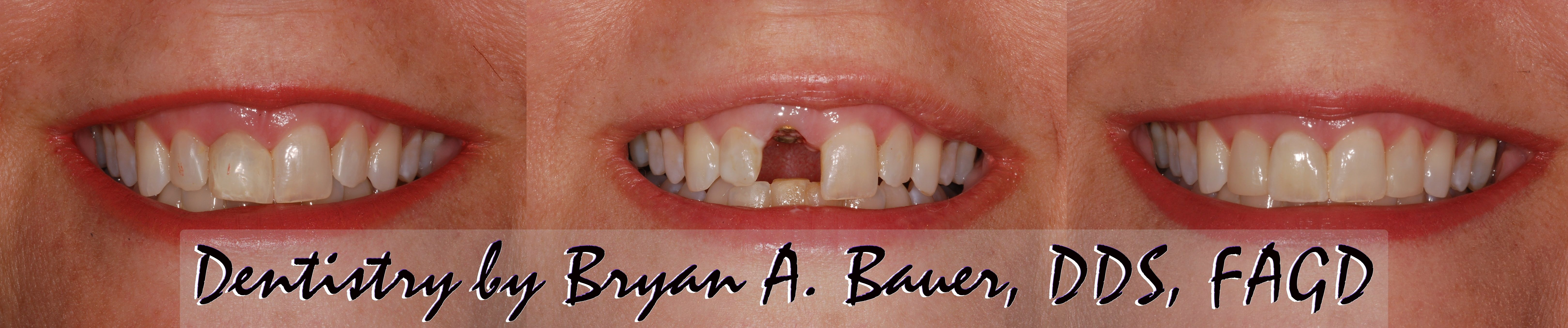 Retainer Dental Implant Crown Related Keywords & Suggestions