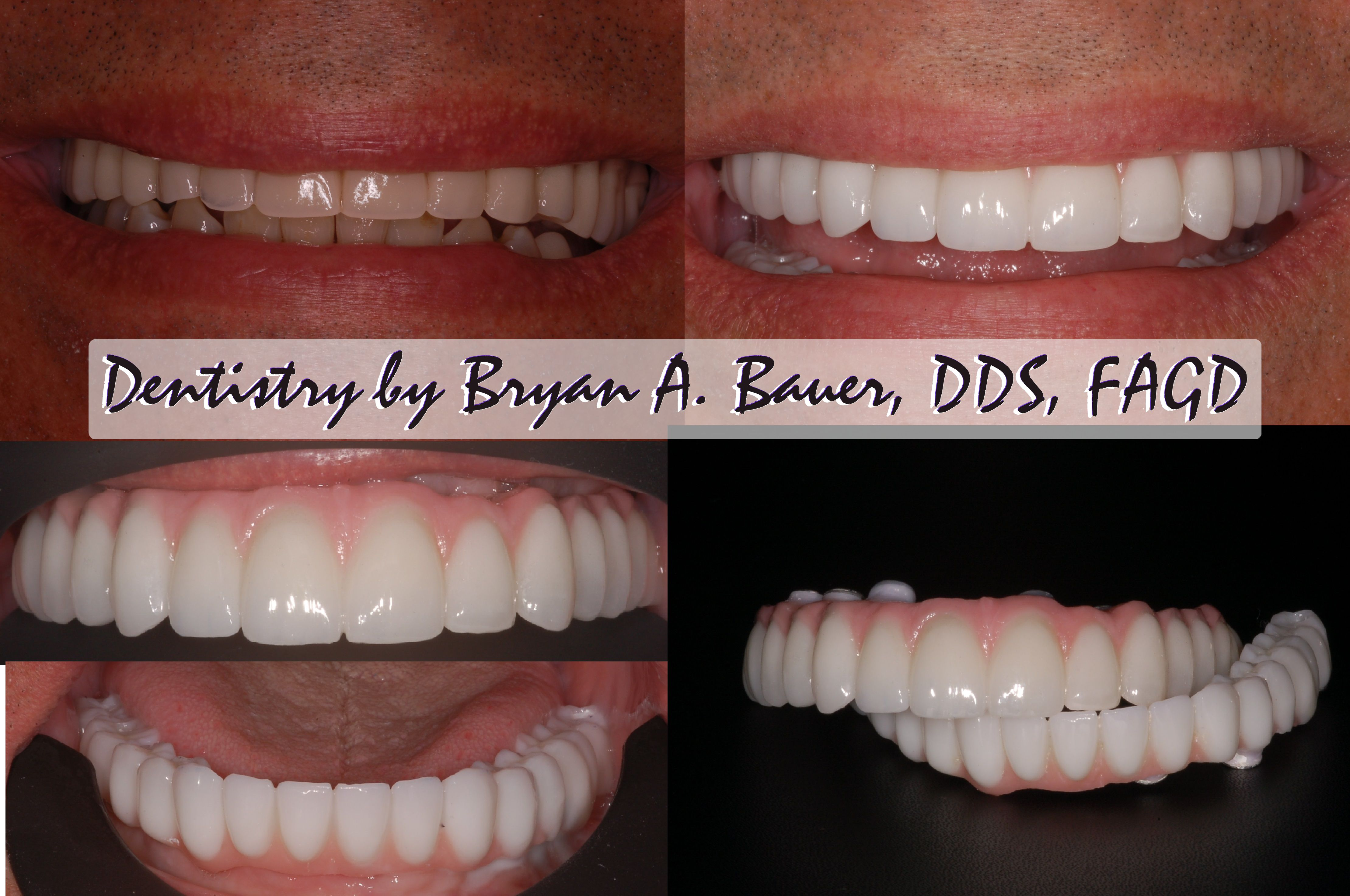 Implant Supported Dental Implant Bridge All On 6 Dental