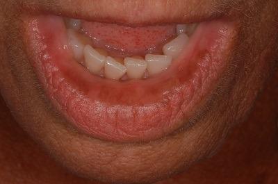 Solodyn lip discoloration