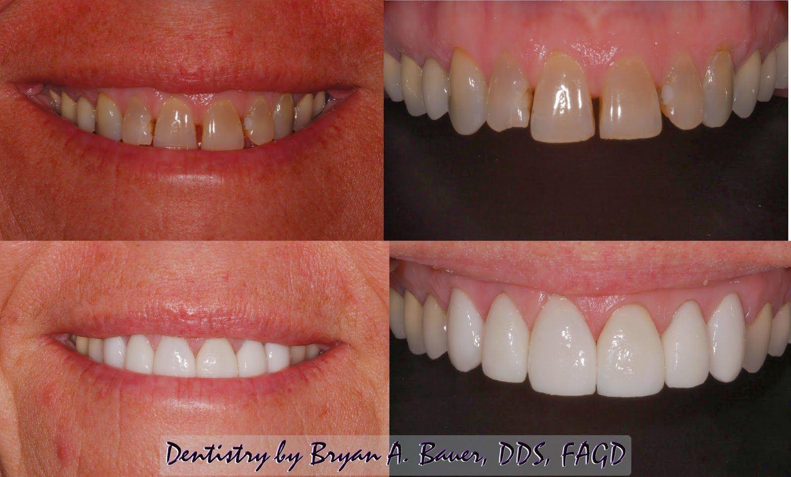 What Type Of Dental Veneers Should You Get